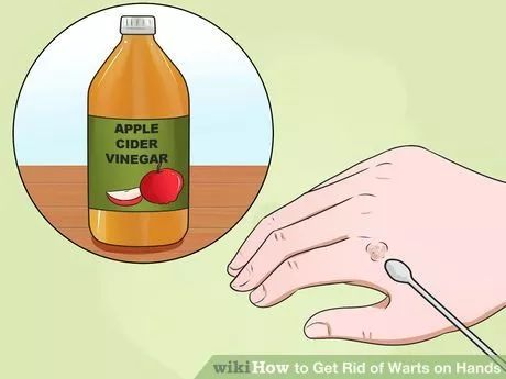 Image titled Get Rid of Warts on Hands Step 6
