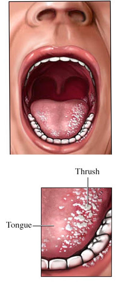 61 Best Tongue Health Images On Pinterest Tongue Health