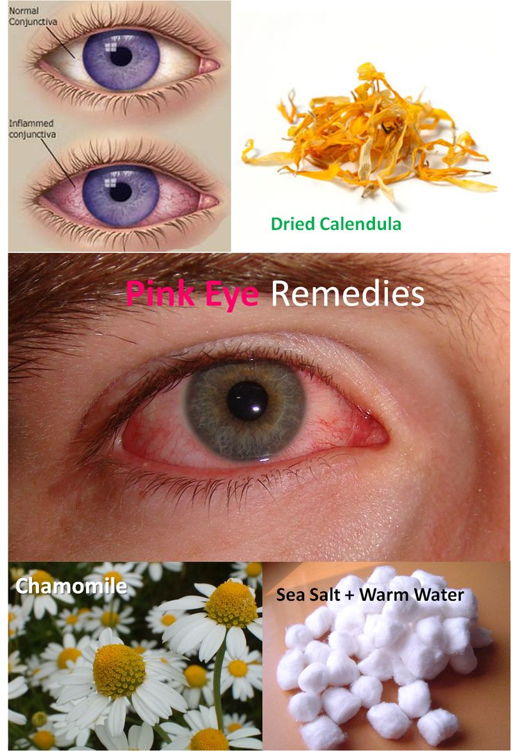 Recommended by http://koslopolis.com *World Online Magazine* Launched July 2015 - Home Remedy for Treating Pink Eye