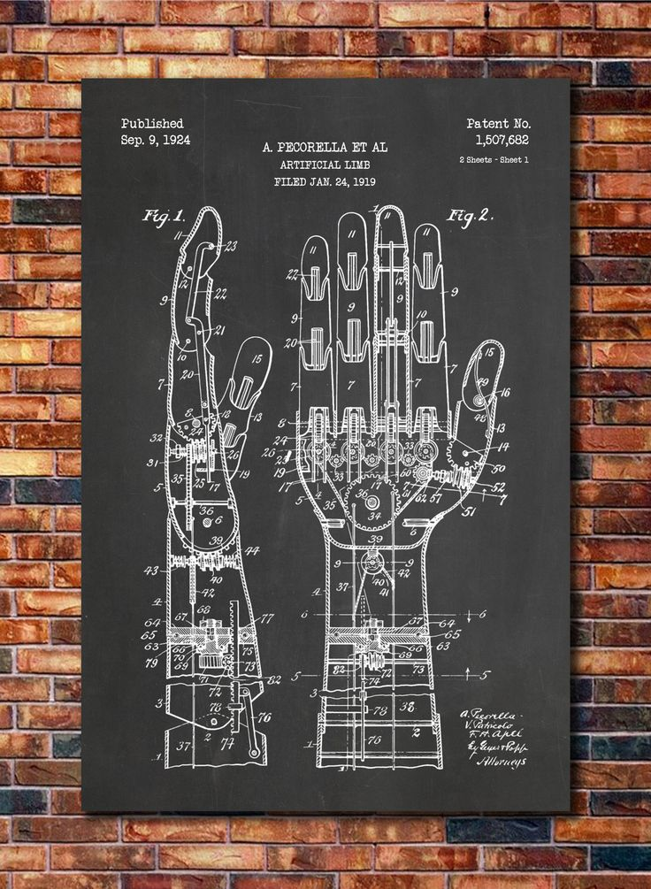 Artificial Hand Patent by CatkumaPatentPress on Etsy