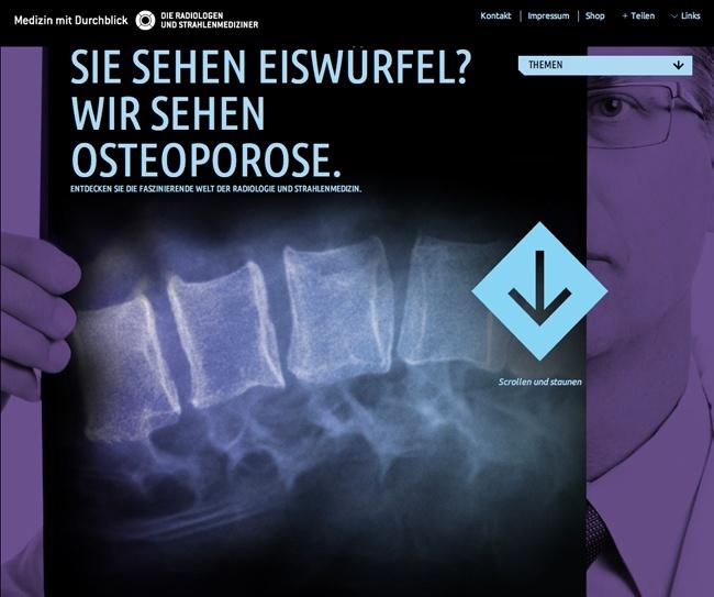 Sie sehen Eiswürfel? Wir sehen Osteoporose.