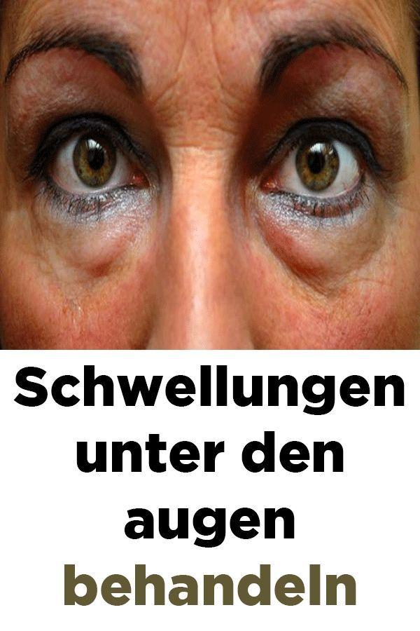 Schwellungen Unter Den Augen Behandeln Gesundheit Und Schonheit Augen Gesundheit