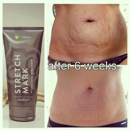 It Works stretch mark cream. Wonderful results after 6 weeks! Questions? Contact me at jrwalton10@gmail.com or visit my site http://jrwalton.myitworks.com