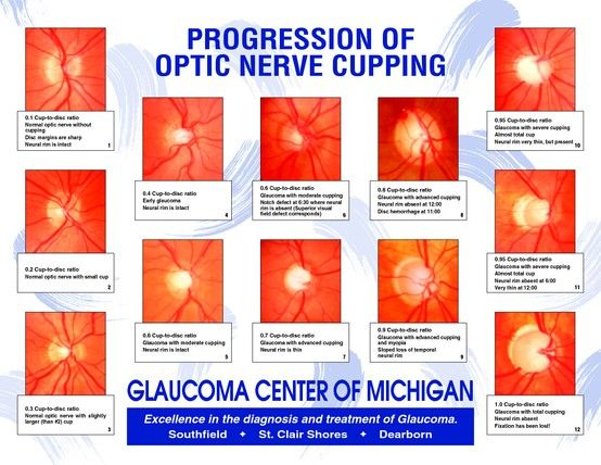 Progression of optic nerve cupping