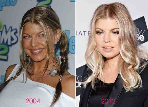 Fergie Before & After Plastic Surgery