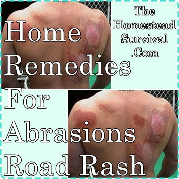 A homesteader can find home remedies for abrasions such as road rash, scratches, accidents, traumas, bed sores, sports injuries, scratching in sleep, scrap