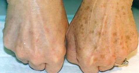 How To Remove Brown Spots On Top of  Hands? via @Mamabeeblog