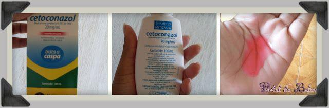 shampoo cetoconazol: Shampoos Cetoconazol, Beleza Cabelos