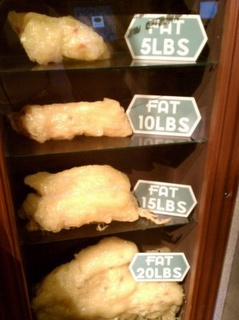 5-20 pounds of fat puts life in perspective.: Inspiration, Diet, Lose Weight, Weight Loss, Fat, Healthy, Fitness Motivation, Weightloss, Workout