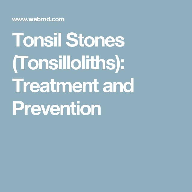 Tonsil Stones (Tonsilloliths): Treatment and Prevention