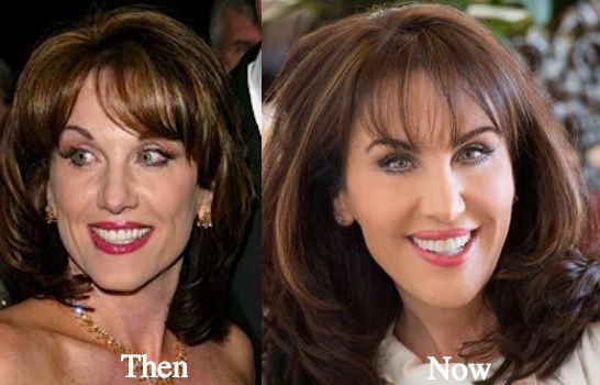 Robin McGraw Plastic Surgery Before And After - Latest Plastic ...