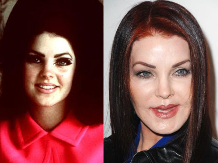 14 Best Images About Stars Had Bad Plastic Surgery On