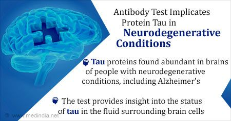 Health Tip on New Antibody Test to Detect Proteins Implicated in Neurodegenerative Conditions