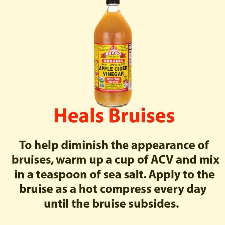 how to get bruises to go away fast