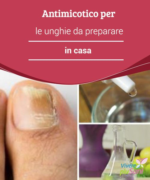 """Antimicotico per le #unghie da preparare in casa  A seguire vogliamo rivelarvi un #rimedio #antimicotico del tutto #naturale che, con soli tre ingredienti, """"distruggerà"""" i funghi per salvare l'unghia."""