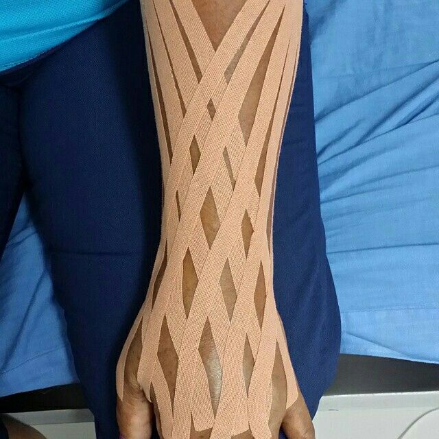 medial tibial stress syndrome taping