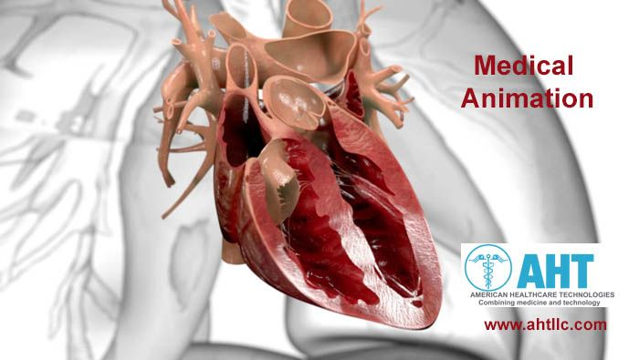 #AmericanHealthcareTechnologies (AHT) is one of the best #medicalanimation service provider. AHT helps to tell stories about the health clearly with the use of 3D medical animation. To do this, AHT transforms #health informations into visually clear, simple and accurate animations.