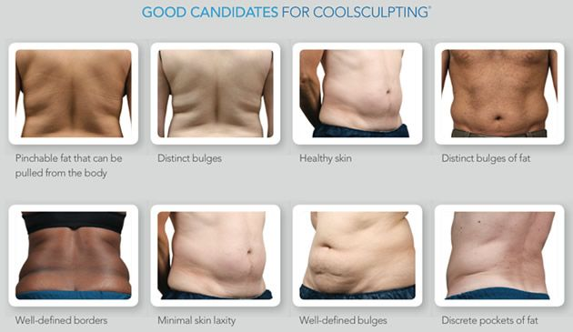 HUGE NEWS!!  CoolSculpting Coming SOON at Massey Medical!  Freeze your problem areas away PERMANENTLY. NO down time, no needles, no surgery, and no anesthesia. If you call and get your name on a list, we will offer a VIP Patient Discount for individuals who attend and schedule during our first Open House for CoolSculpting! Only 30 spaces available. Call us at 423-994-8243. Other services listed at Masseymedical.com