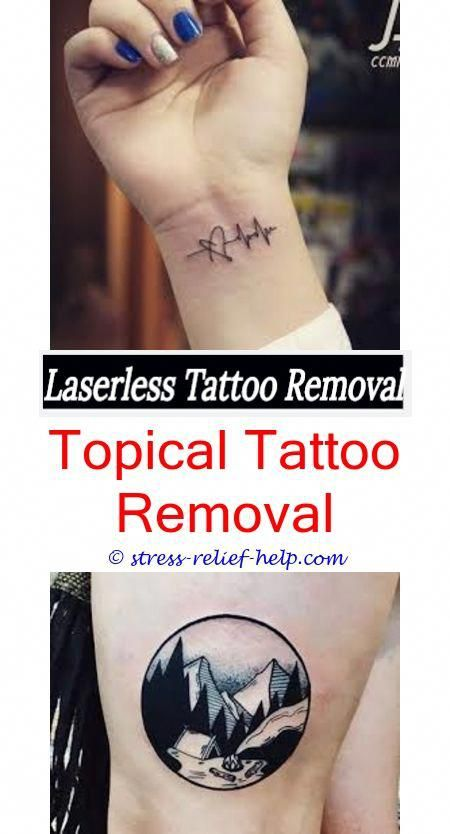 Removable Tattoo Ink How Much To Get A Tattoo Removed Uk How To