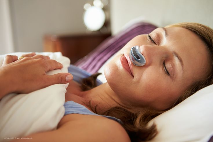 Airing: maskless, hoseless, cordless micro-CPAP device.