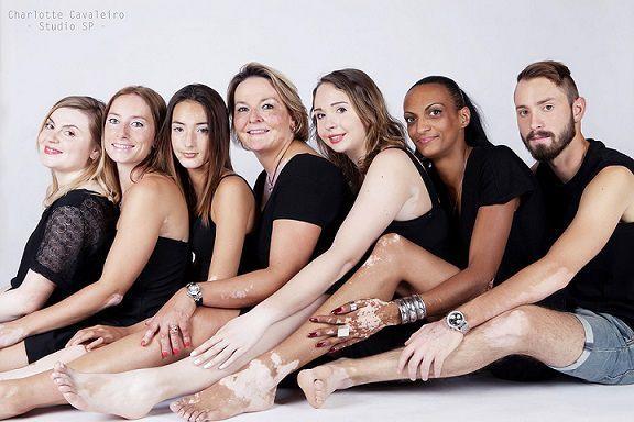Journée mondiale du vitiligo.   #AssociationFrançaiseDuVitiligo #JournéeMondialeDuVitiligo #MaladieDuVitiligo  http://p-wearcompany.com/p-wear-sphere/actu/journee-mondiale-du-vitiligo/