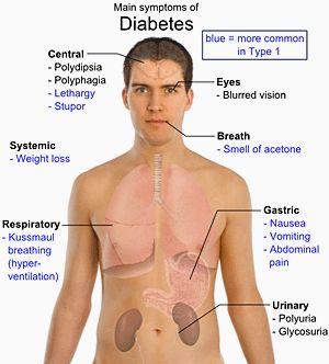 Google Image Result for http://2.bp.blogspot.com/_8tuIVs5H7Fw/TIPhSs6uWrI/AAAAAAAABi8/4vEEDeUF1WY/s1600/Diabetes_mellitus_body_layout.gif