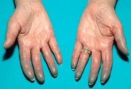 Raynaud's disease is a form of sensitivity to cold . Often seen in lupus. Fingers turn blue from lack of blood flow to the tips