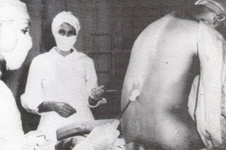 """Tuskegee Syphilis Experiment (1933) When asked why they had to receive several """"back shots""""(spinal taps), researchers repeatedly lied to the men, claiming theshots were .""""therapeutic"""" when in fact the spinal taps gaveinsight to infection from the spinal canal into the brain.I think there is a book about it called: The immortal Life of Hennrietta Lack, she being one of the first."""