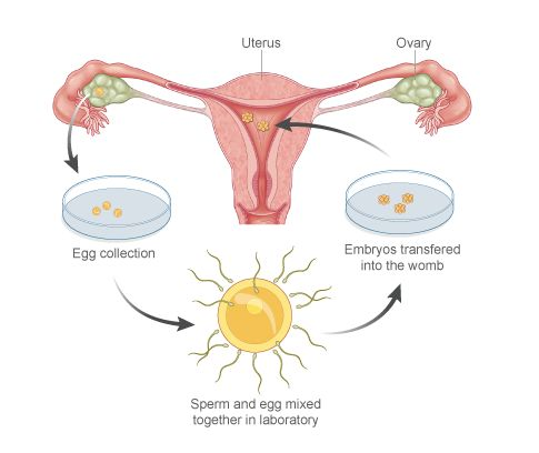 17 Best images about IVF on Pinterest