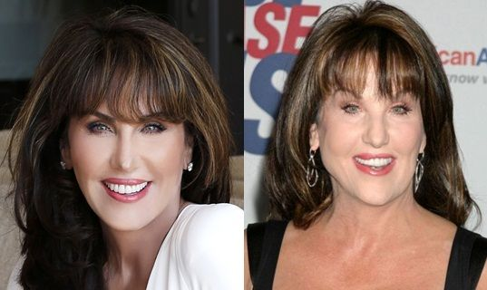 http://actsurgery.com/wp-content/uploads/2015/05/Robin-Mcgraw-Plastic-Surgery-Before-After-Photosb.jpg