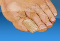 What causes thick and discolored toenails? What kind of different treatments are there? http://www.myfootfix.com/problem/thick-discolored-toenails/