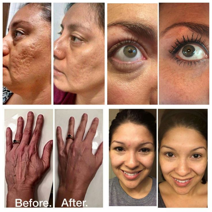 Skin, hands, cheeks, and eyes! Nerium Magic  www.katyJwebb.nerium.com