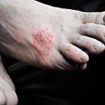 28 Home Remedies for Psoriasis | HowStuffWorks