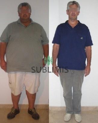 Foto de antes y despues de una banda gastrica ajustable. Cirugia realizada en Cordoba, Argentina por especialistas de Sublimis.