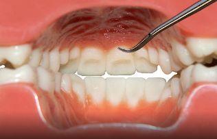 Best 20+ Oral cancer ideas on Pinterest | Dental assistant, Dental hygiene and Dental hygienist