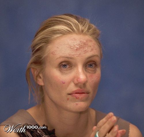 Cameron Diaz acne, 29 Celebrity Photos They'll Wish You Never Saw - Page 6 of 30 - BuzzLamp