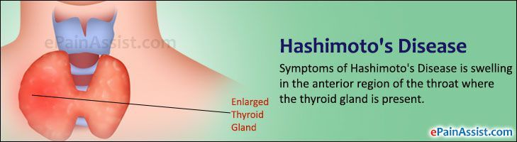 Hashimoto's disease or Hashimoto's thyroiditis is an autoimmune disorder where our own immune system starts attacking the thyroid gland. ** More details can be found by clicking on the image. #ThyroidDiseaseSymptoms