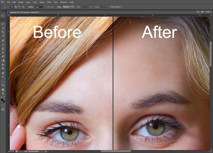 Using the Median Filter - Before and After Image