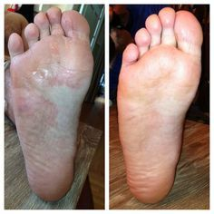 How I used essential oils to rid my husband of a stubborn case of athletes foot in just 5 days! | dreawood.com