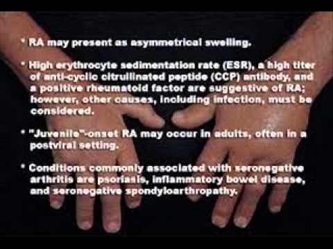 seronegative arthritis - WATCH VIDEO HERE -> http://arthritisremedy.info/seronegative-arthritis/     *** what is seronegative arthritis ***  Video credits to the YouTube channel owner