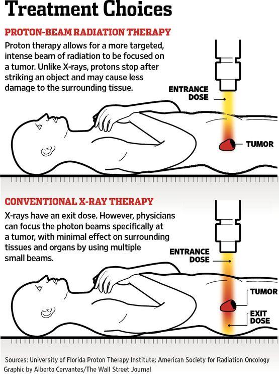 prostate cancer stage -