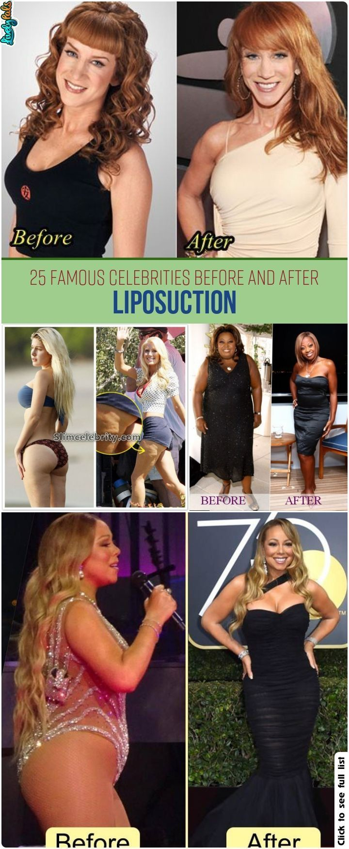 25 Famous Celebrities Before And After Liposuction – #celebrities #famous #Lipos…