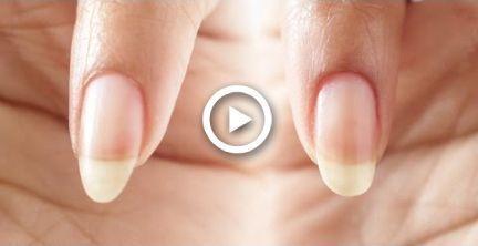 MANDEL vs OVAL | NAGELPFLEGE ROUTINE | abetweene #dabet #mandel #nagelpfleg … – Nagelpflege