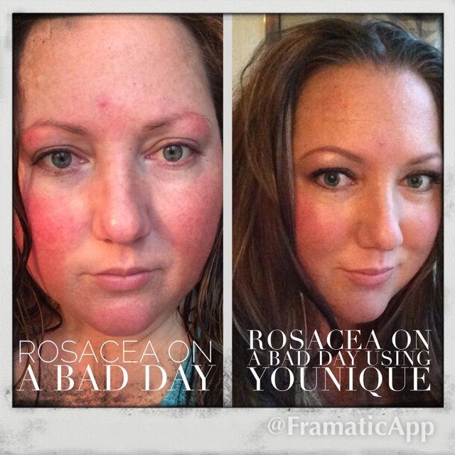 Best Makeup For Rosacea Redness   Saubhaya Makeup