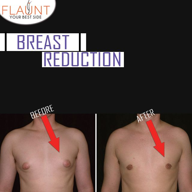 #Male #Breast #Reduction. #cosmeticsurgery #Breast…