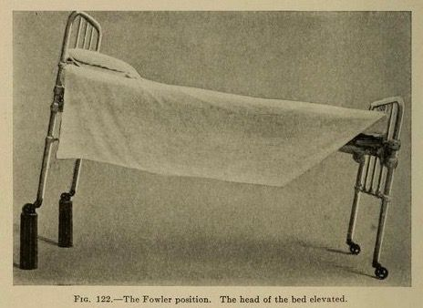 """Fig. 122. """"The Fowler position. The head of the bed elevated."""" The art of anaesthesia. 1922."""