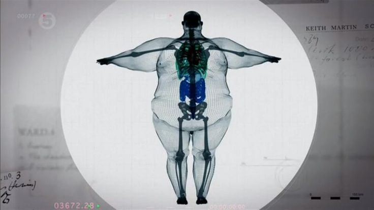 x ray of obese person - skeleton/frame is the same!  Lots of strain/stress on bones.  Motivation to make good health a priority!