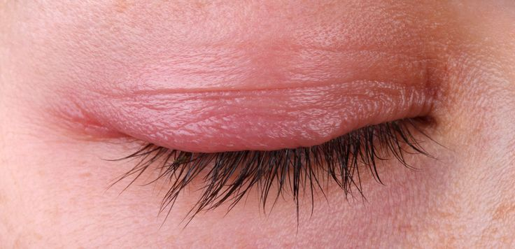 Eyedolatry: Itchy, Irritated Eyelids? Fight Back