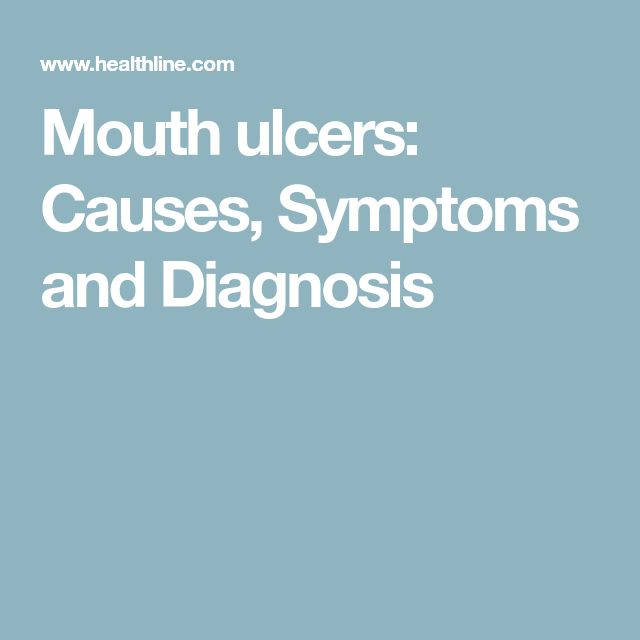 Mouth ulcers: Causes, Symptoms and Diagnosis