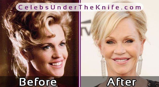 Melanie Griffith Plastic Surgery Before After Photos #celebsundertheknife #celebs #celebrity #plasticsurgery #celebritysurgery